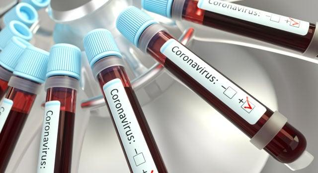 Vials of blood for virus testing